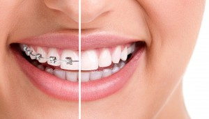 Bagues orthodontiques