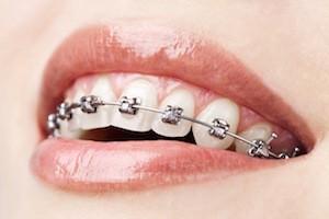appareil orthodontique a Thonon les bains