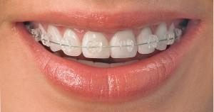 Bagues orthodontiquesen céramique